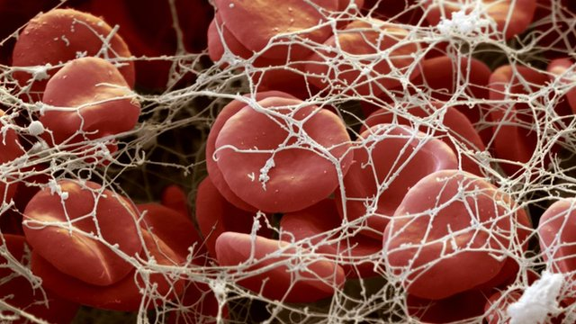 Red blood cells in a blood clot