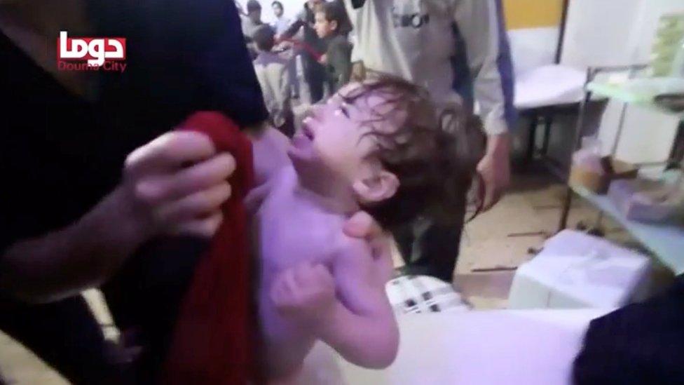 Imagen suministrada por los cascos blancos muestra un menor afectado por el supuesto ataque químico en Douma, este de Damasco