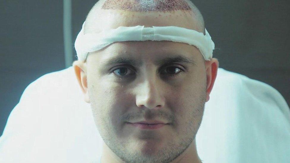 Hair transplants: Fighting against my receding hairline