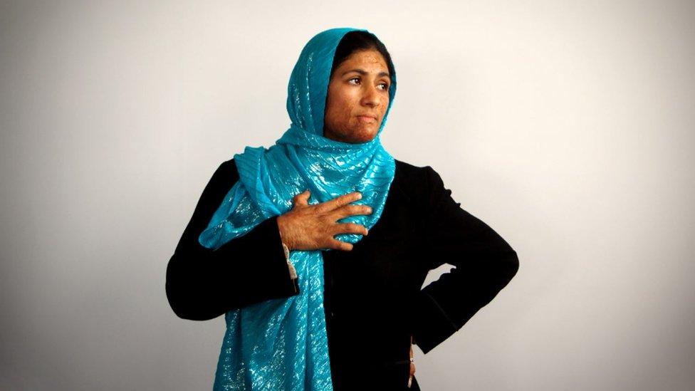 خديجة أفغانية من هيرات وقد بدت الحروق على وجهها بعد أن أضرمت النار في نفسها بسبب مشكلات الأسرة