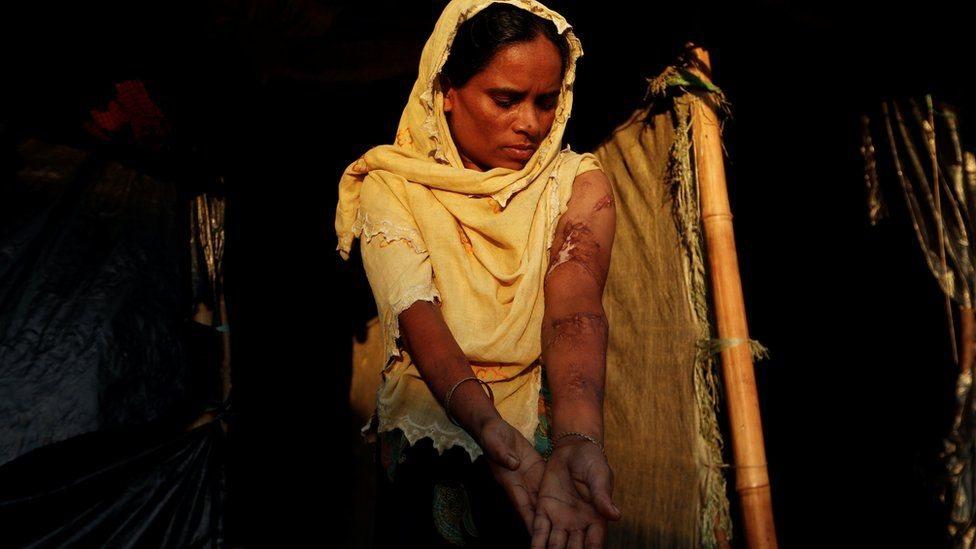 Rohingya lady Anwara Begum