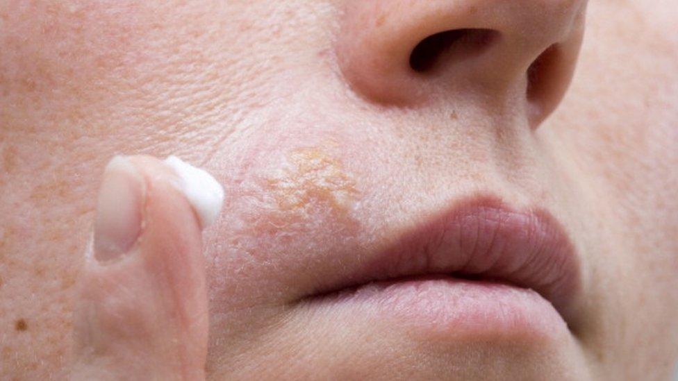 El Zovirax se usa para combatir el herpes labial.
