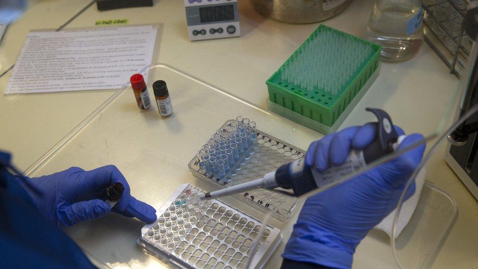 Klinički test na antitela SARS-Cov-2 u laboratoriji Univerziteta u Vašingtonu