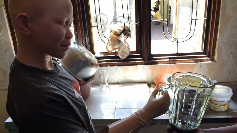 albino child with prosthetic limb lifts water jug