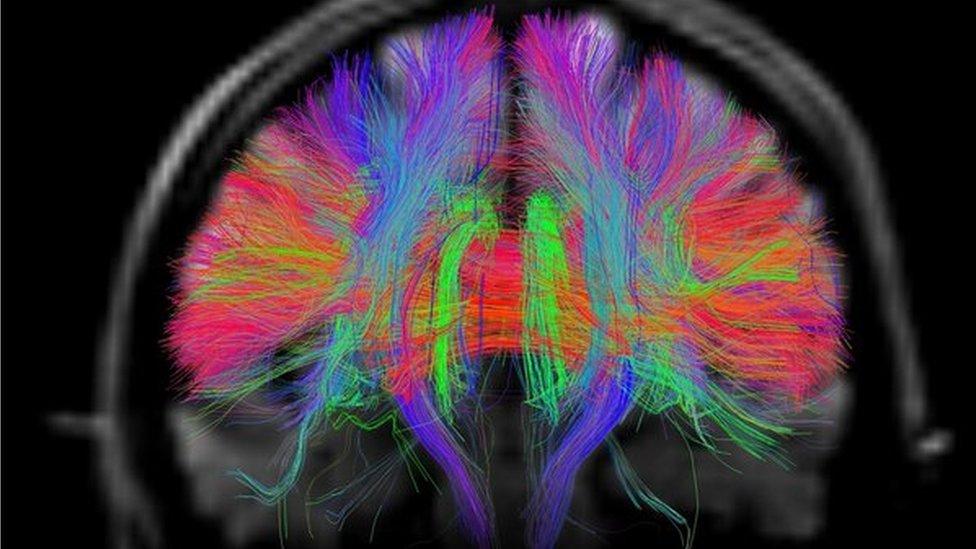 Pallab's brain