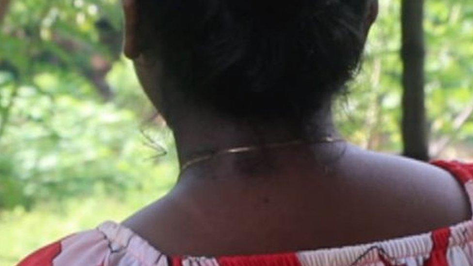 Shiroma Pereira con cicatrices todavía visibles en el cuello y la cara