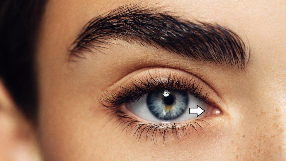 Üçüncü göz kapağı gözün köşesindeki katlı bir doku