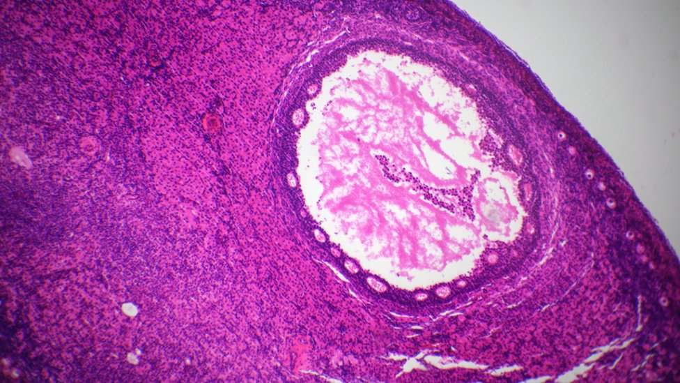 Section of ovary under the microscope