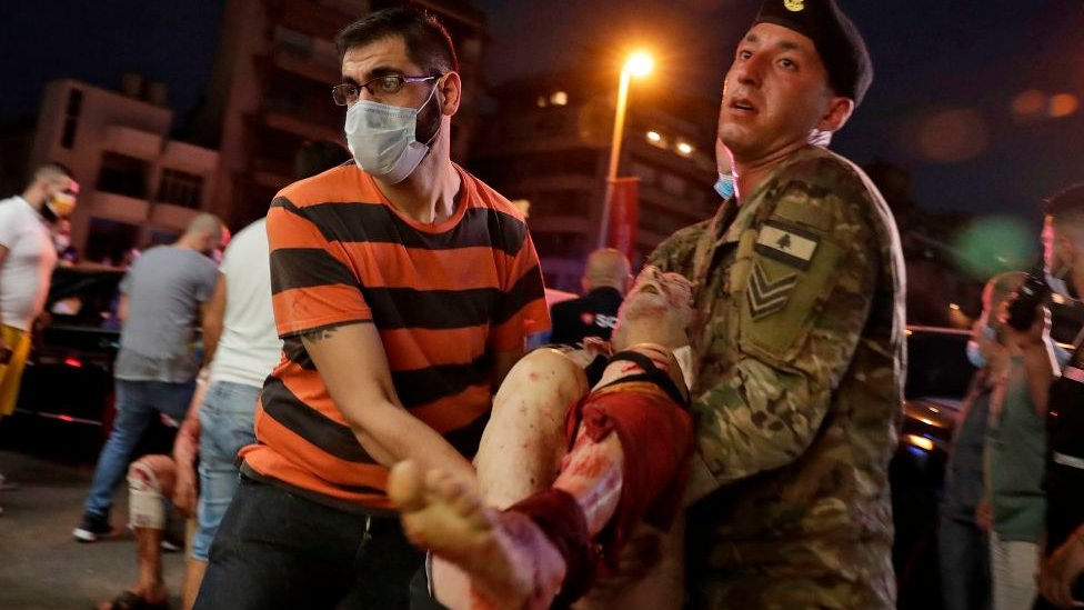 Personas rescatando a una víctima de la explosión.