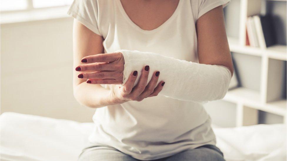 Mujer con brazo en escayola