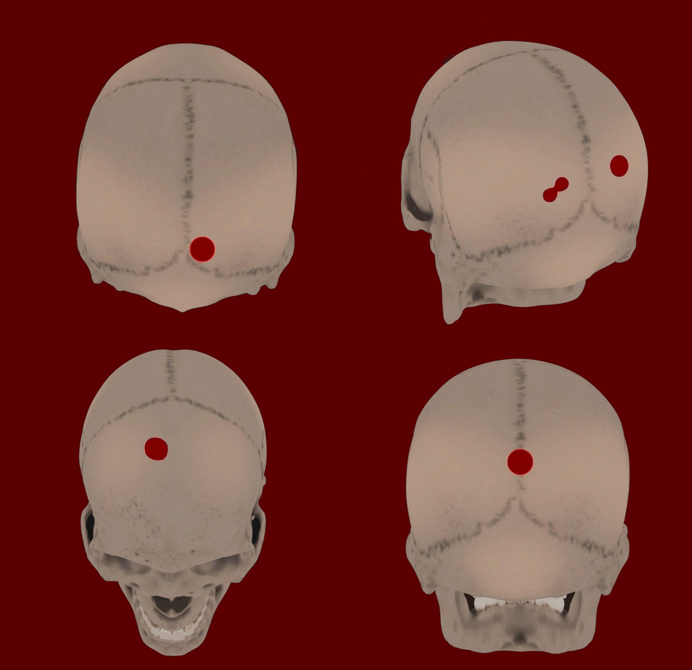 Diagramación de los cráneos encontrados con puntos que señalan los orificios