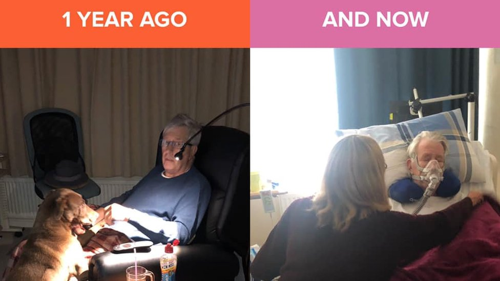 Mr Gibson sitting in his chair, and then a year later with a mask on in bed, very poorly