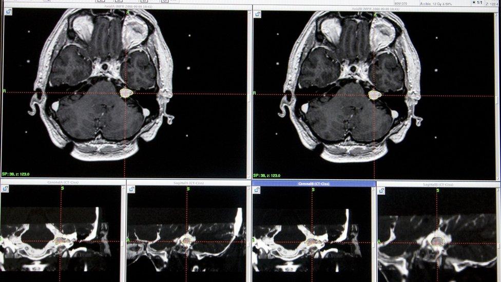 MRI del cerebro