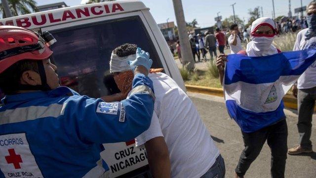 Herido en Managua
