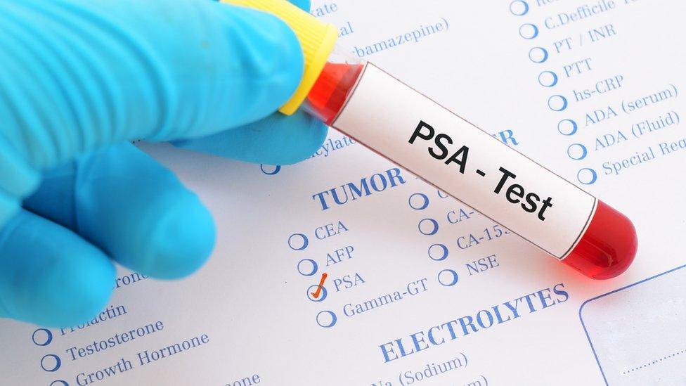 agresión y clase de análisis de sangre de próstata