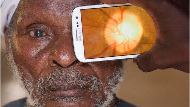 escaneo de un ojo con un celular
