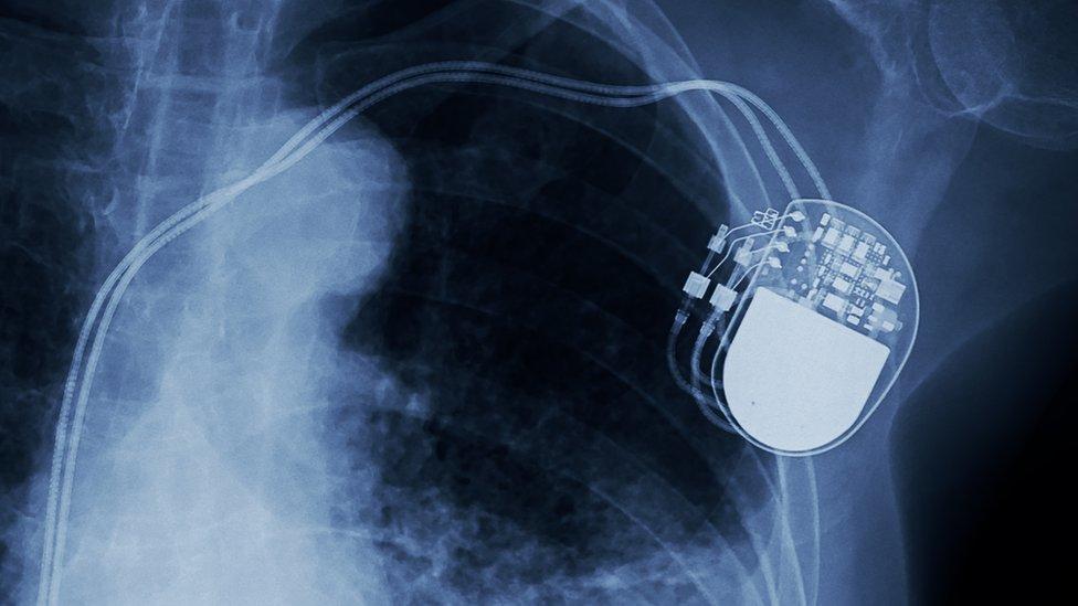 X-ray dada.