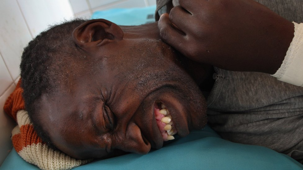 Fredrick Shaba, a local official for the Zimbabwean opposition party Movement for Democratic Change is treated for stab wounds June 20, 2008 in Bulawayo, Zimbabwe.