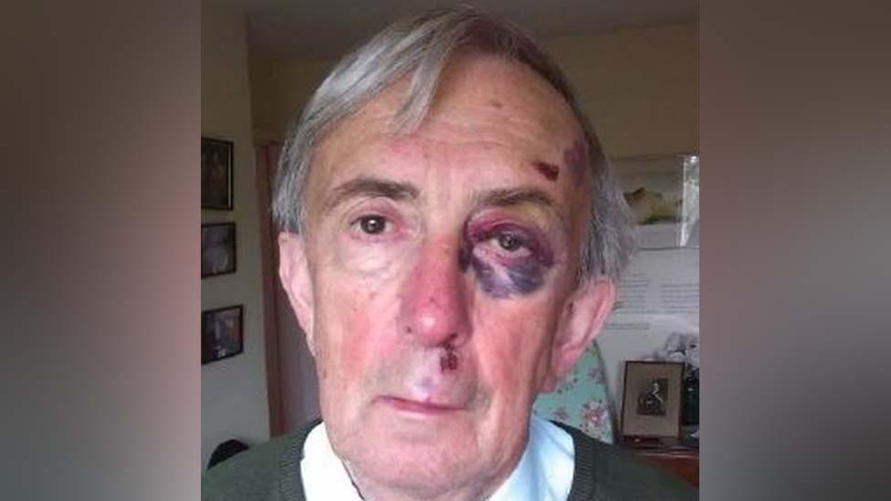 Peter Farquhar con un ojo morado