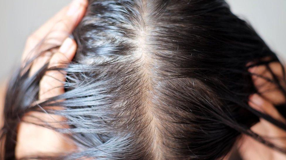 Una cabeza con pérdida de cabello