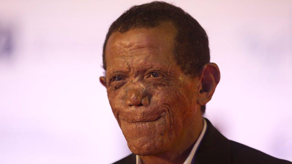 راضي جمال، الذي أدى شخصية المجذوم السابق بشاي