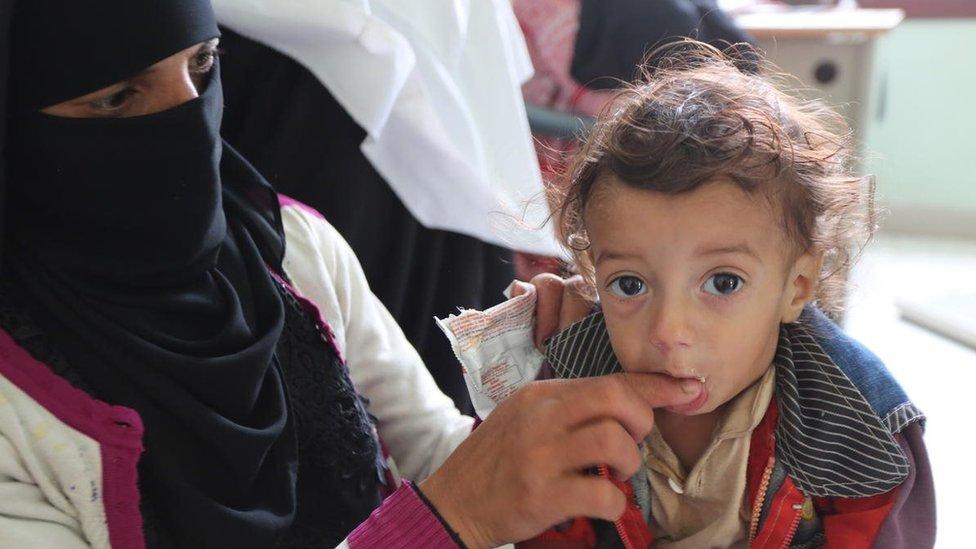 طفل بعمر 14 شهرا يعاني من سوء التغذية يتلقى علاجا في عياردة مدينة عمران باليمن