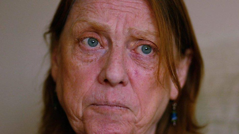 Patients lose hip replacement court case