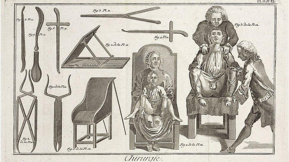 Grabado de cirujanos, pacientes e instrumentos del siglo XVIII