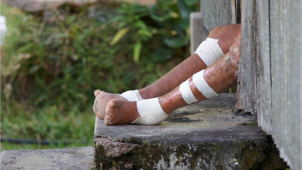 Perna de pessoa afetada por hanseníase