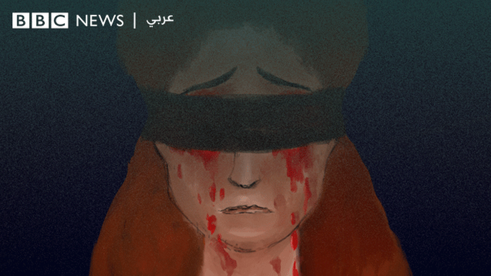 رسم تمثيلي لامرأة خسرت عينيها