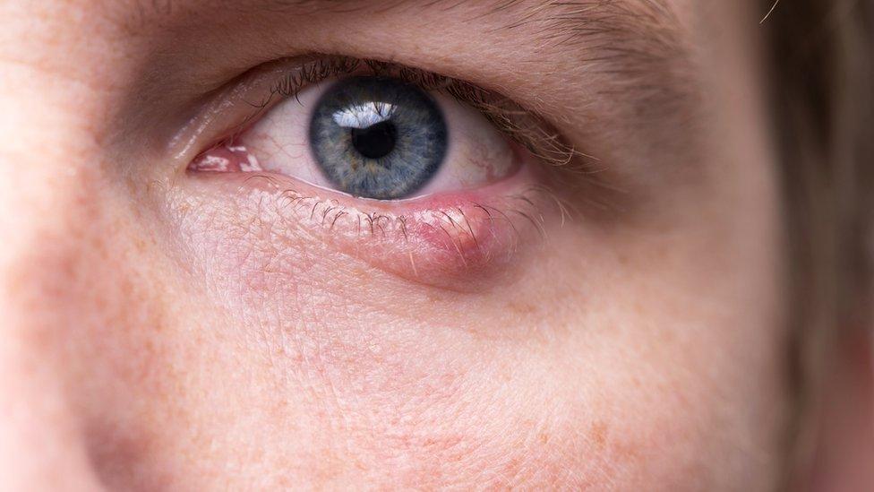 Hombre con ojo infectado