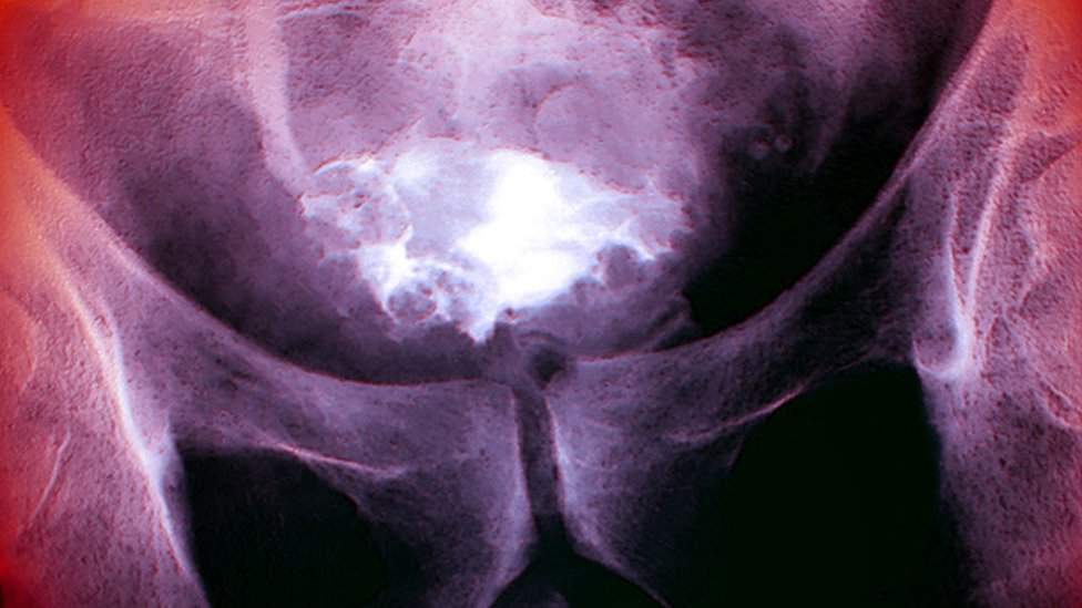 X-ray of bladder cancer