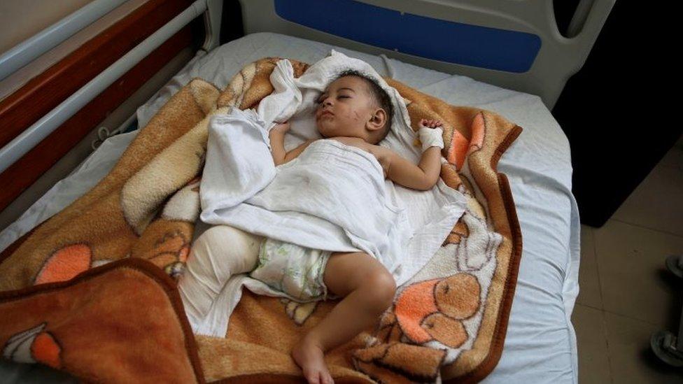 El bebé de tan solo cinco meses, Omar Al-Hadidi, que sobrevivió a un ataque israelí en Gaza.