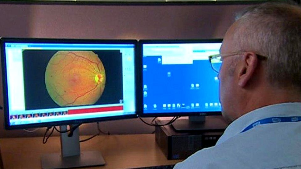 Diabetic sight loss cut by screening, research shows