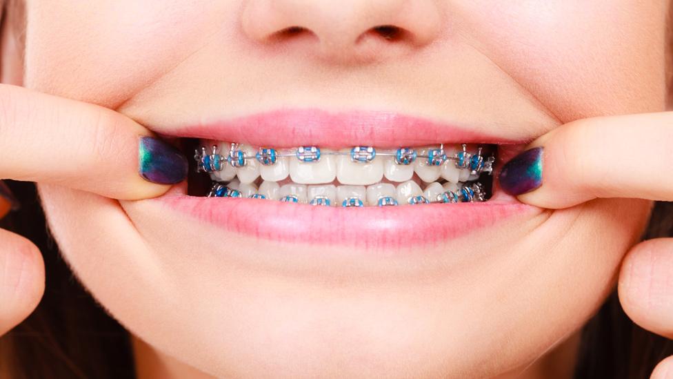 Dientes con ortodoncia