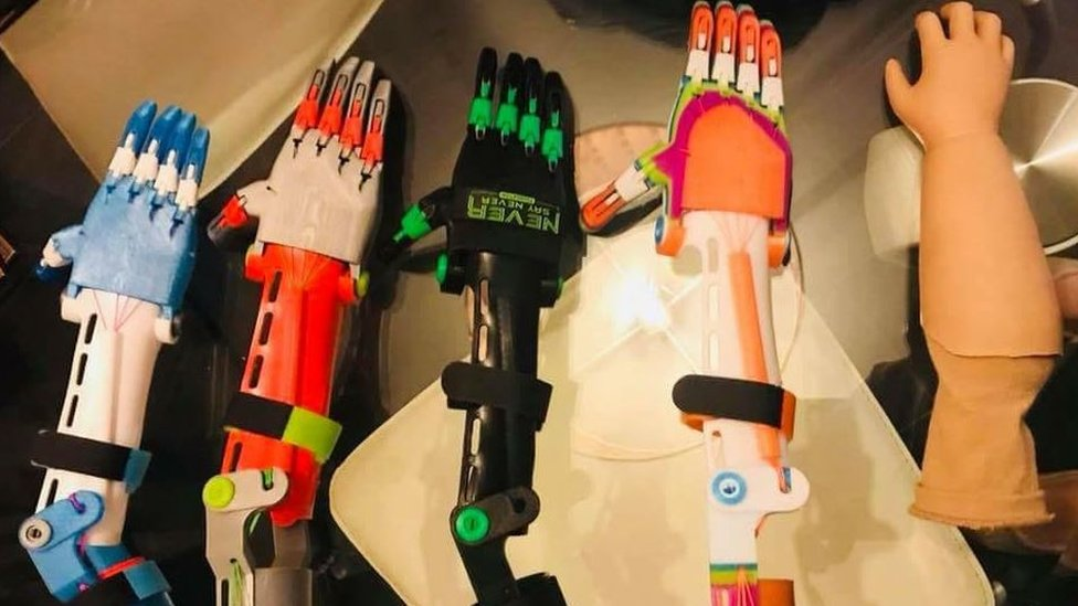 The 3D printed arms and the NHS prosthetic