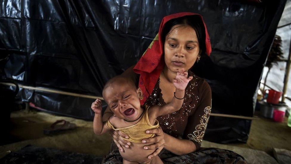 Niño con desnutrición