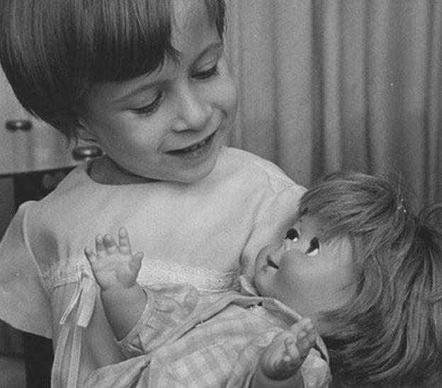 Niña con un problema en los brazos con una muñeca.