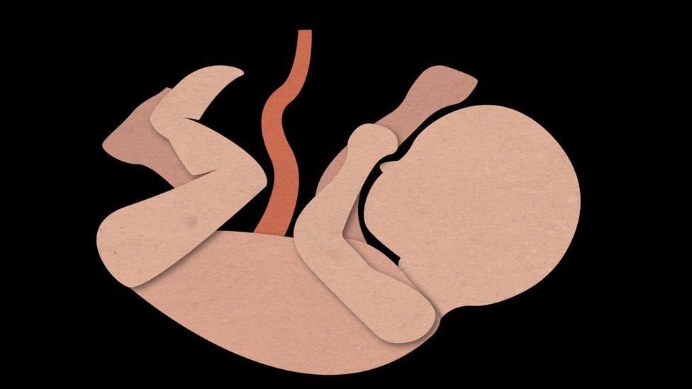Gráfico de un feto humano.