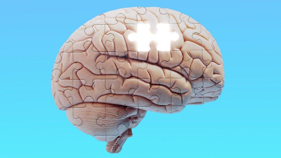 ilustración - Alzheimer