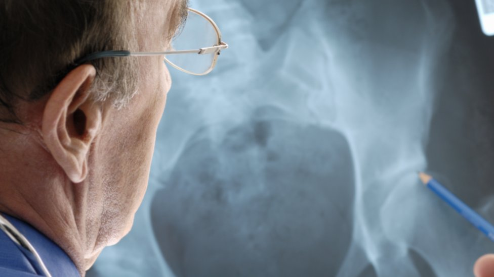 Hip implant patients sue manufacturer