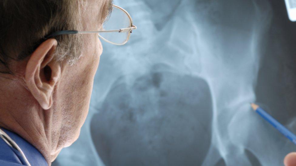 Hip implant patients sue manufacturer