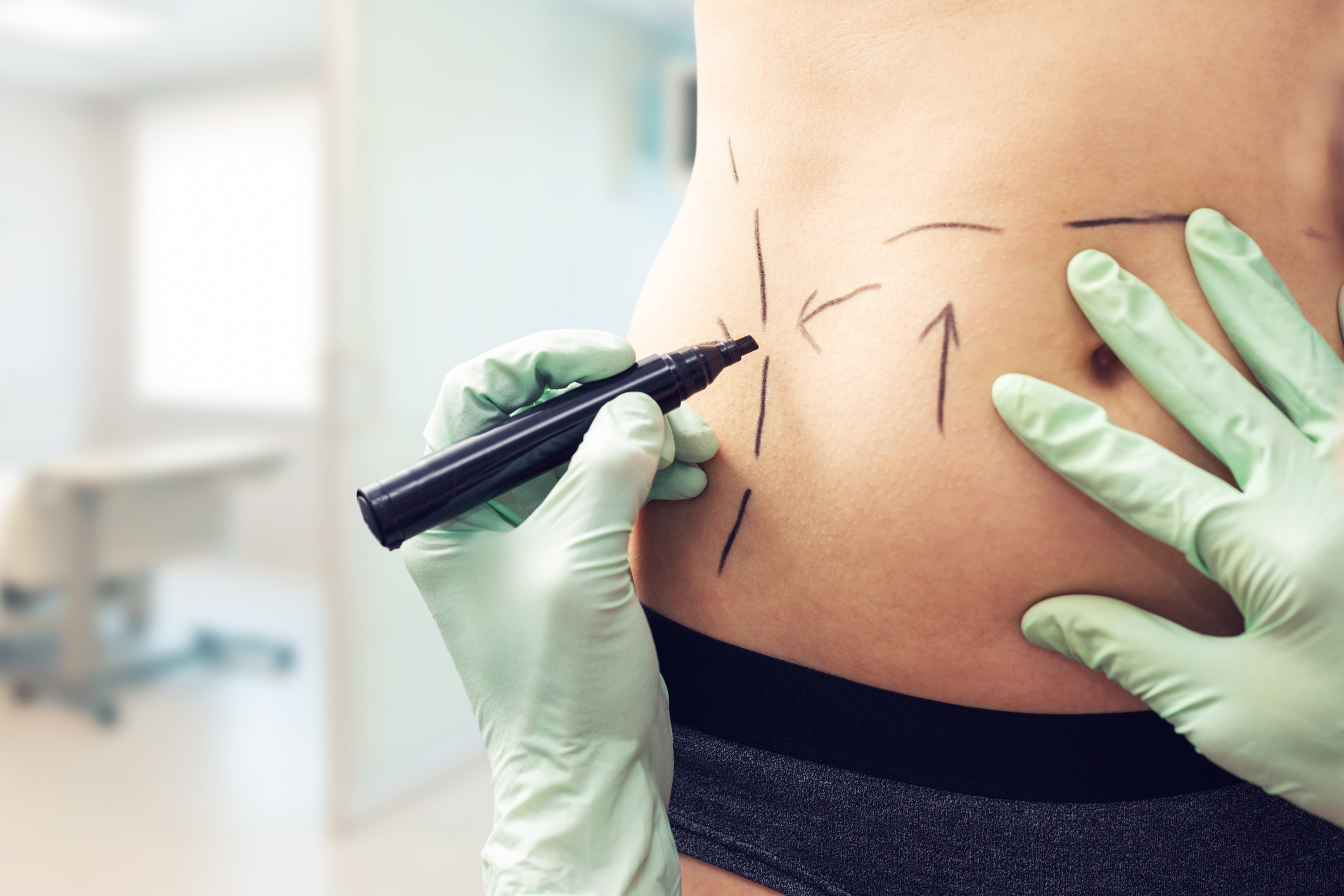 A patient is marked up for liposuction