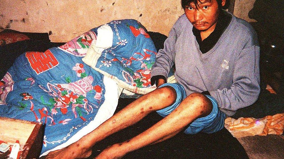 這名29歲的男子2000年因為賣血感染了艾滋病毒。他從16歲開始賣血攢錢,為家裏蓋房子。