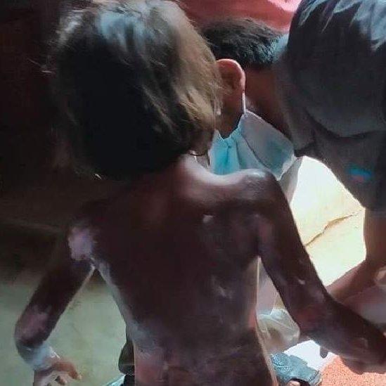 pengungsi Rohingya, kebakaran di kamp pengungsi Rohingya
