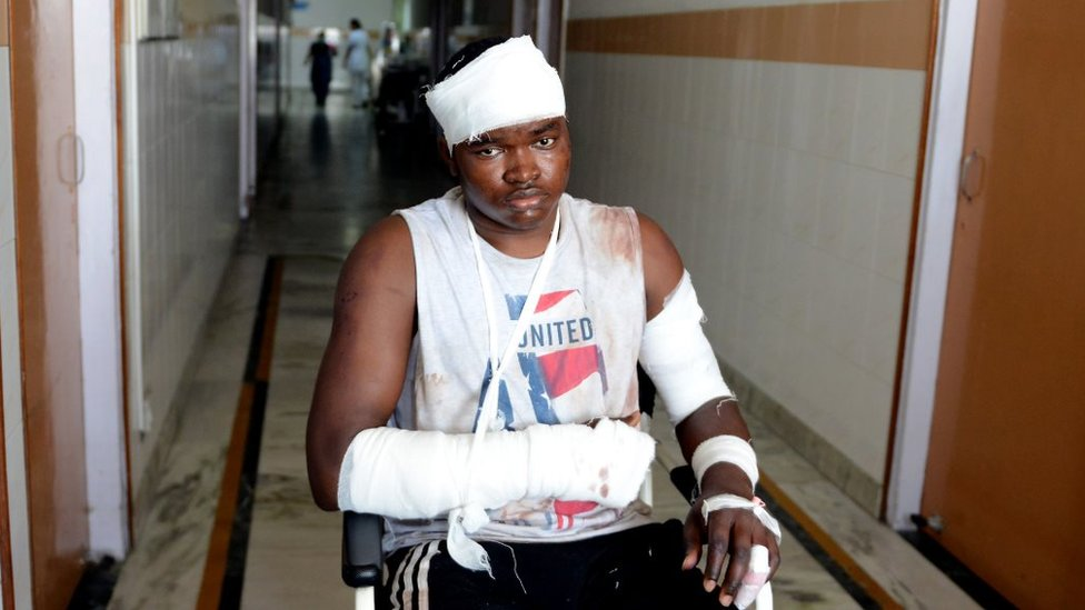 Endurance Amarawa were admitted at a hospital after Monday nights attacks on African nationals in Greater Noida