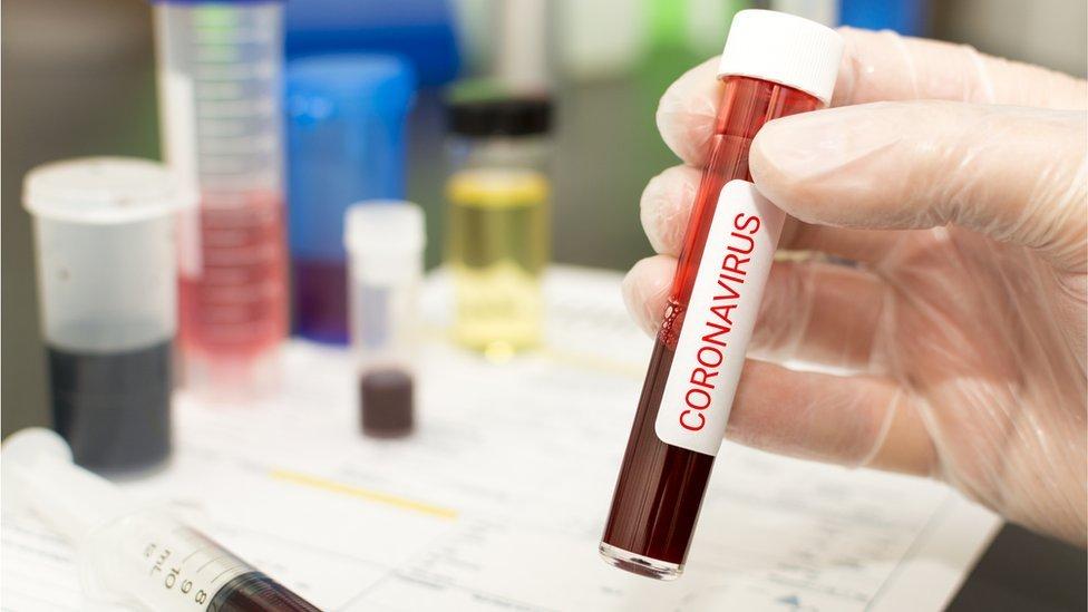 Treći slučaj zaraze potvrđen je u petak u Republici Srpskoj, prenosi RTRS