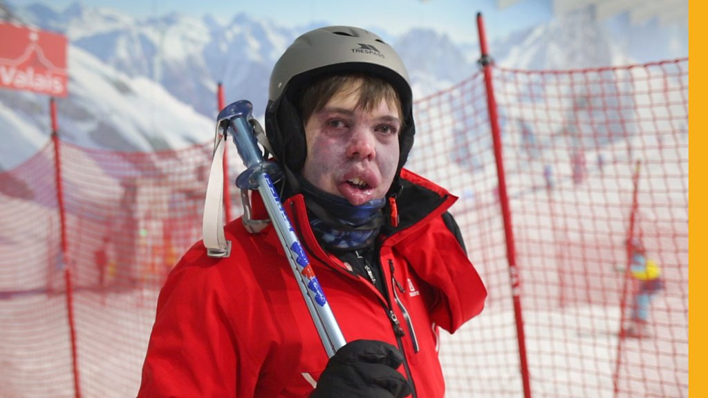 Skiing helps me take on the outside world