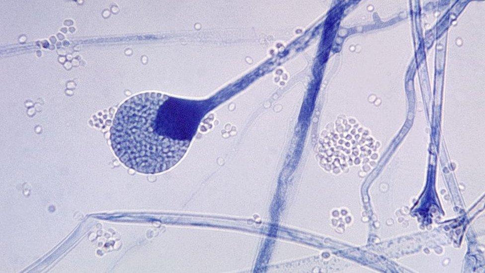 Vista microscópica do fungo mucoso