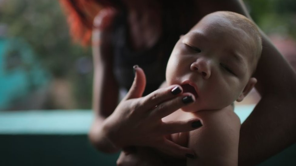 Babies born with abnormally small heads may face lifelong difficulties